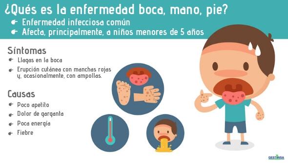 Infografía enfermedad boca, mano, pie (virus Coxsackie)